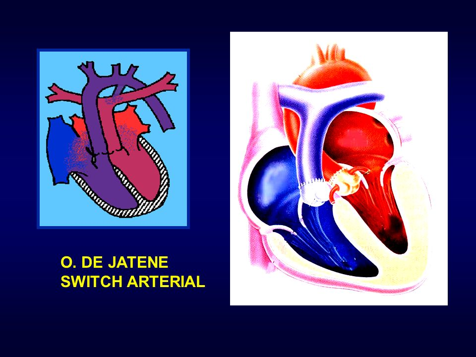 O. DE JATENE SWITCH ARTERIAL