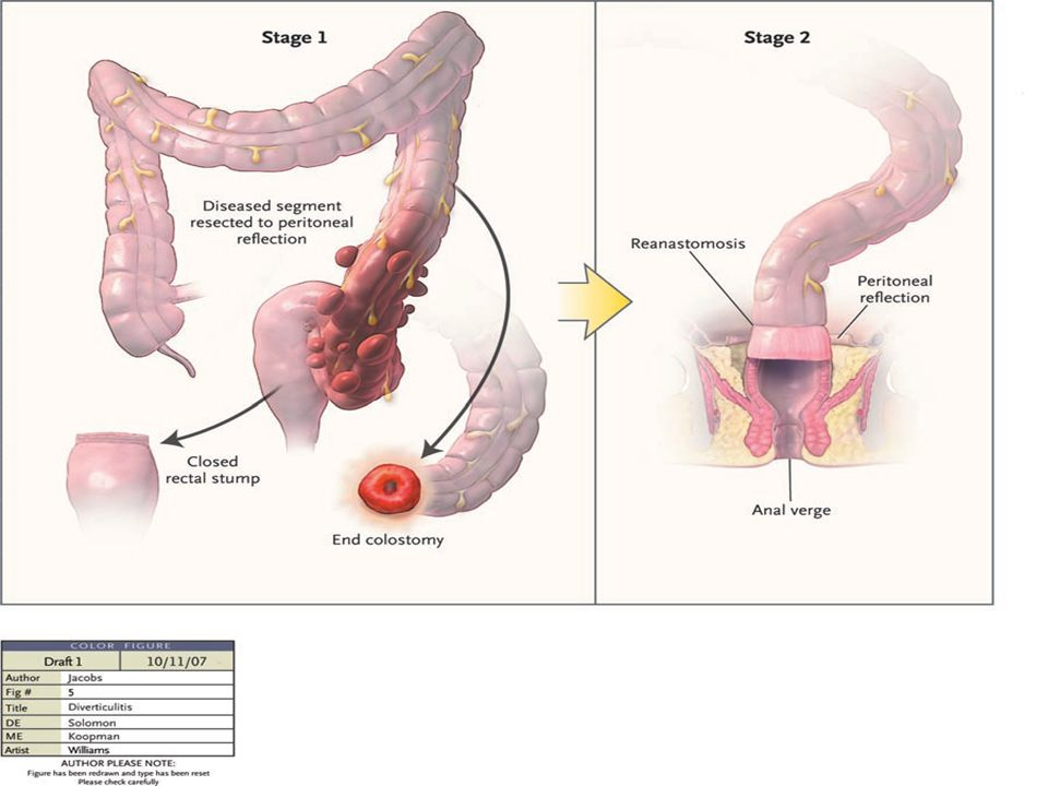 Oral Surg Pathol 2008;105:216-21