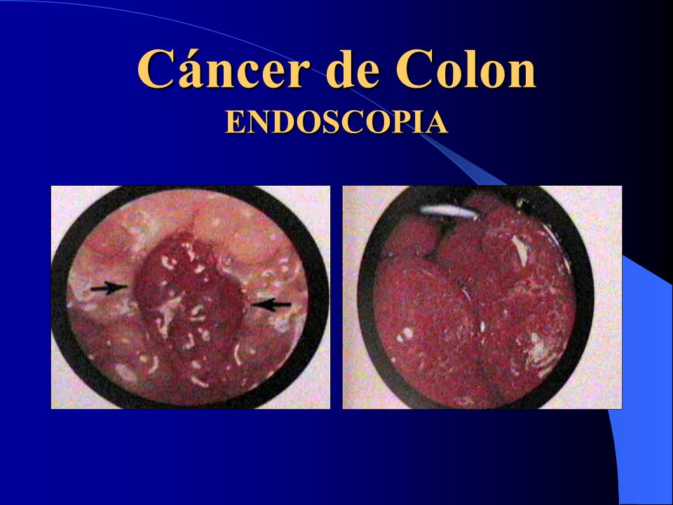 Cáncer de Colon ENDOSCOPIA