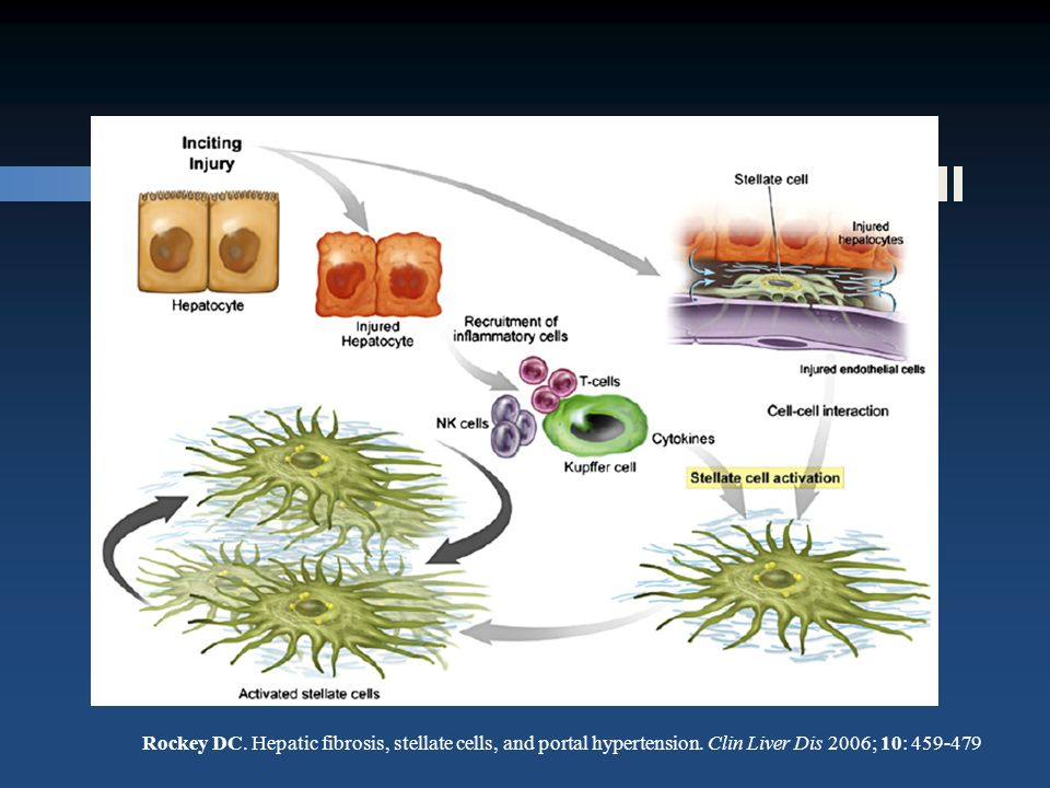 Rockey DC. Hepatic fibrosis, stellate cells, and portal hypertension