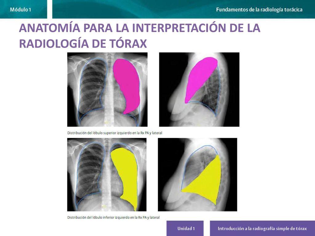 INTRODUCCIÓN A LA RADIOGRAFÍA SIMPLE DE TÓRAX - ppt descargar