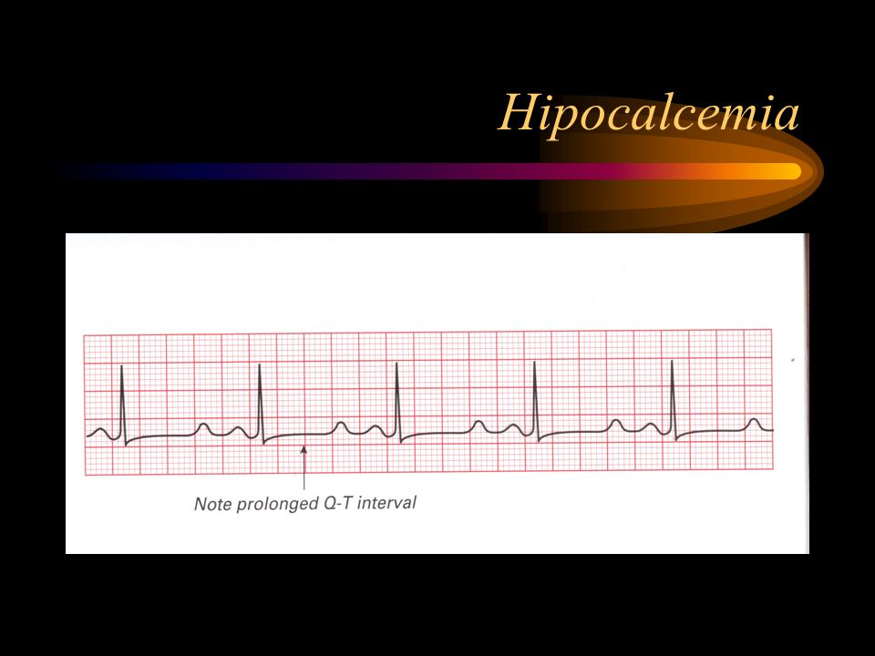 Hipocalcemia