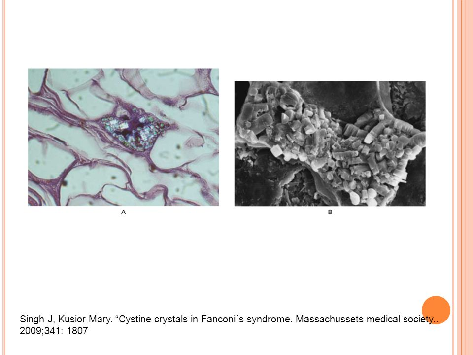 Singh J, Kusior Mary. Cystine crystals in Fanconi´s syndrome