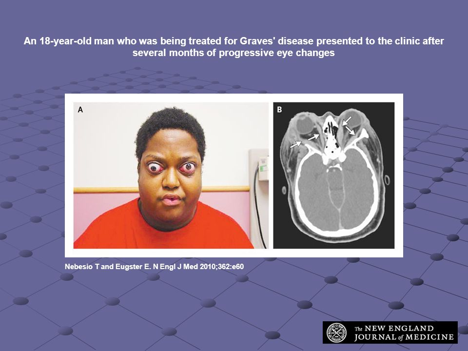 An 18-year-old man who was being treated for Graves disease presented to the clinic after several months of progressive eye changes