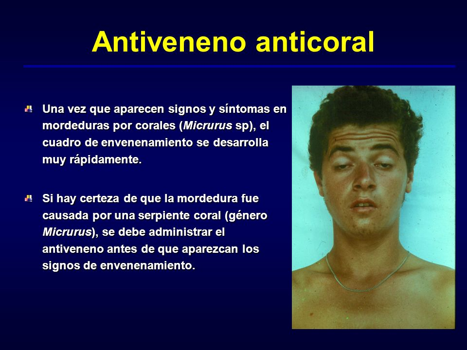 Antiveneno anticoral