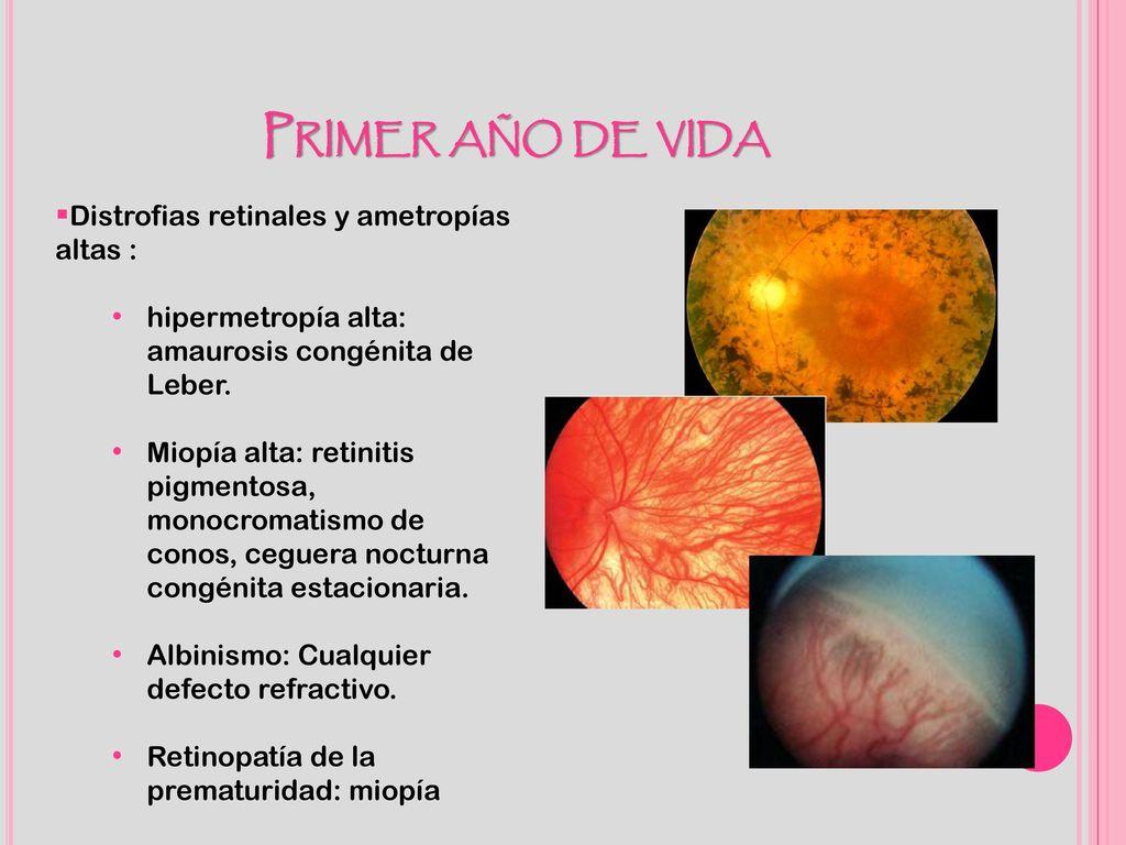 48c3d1a34c Primer año de vida Distrofias retinales y ametropías altas :