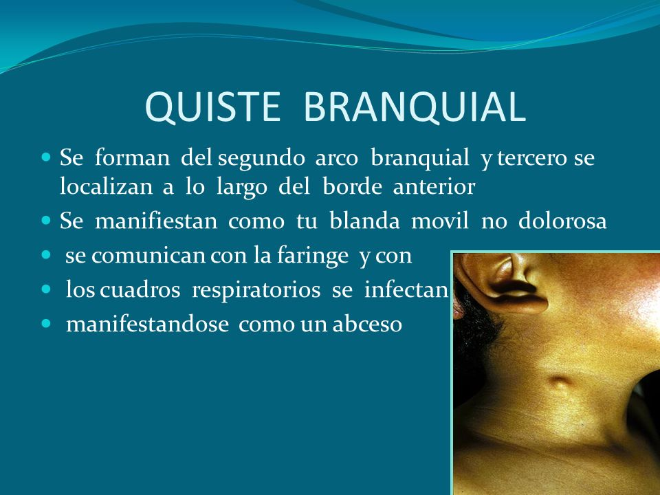 DR. HUGO HAWKINS OTORRINOLARINGOLOGO - ppt video online descargar