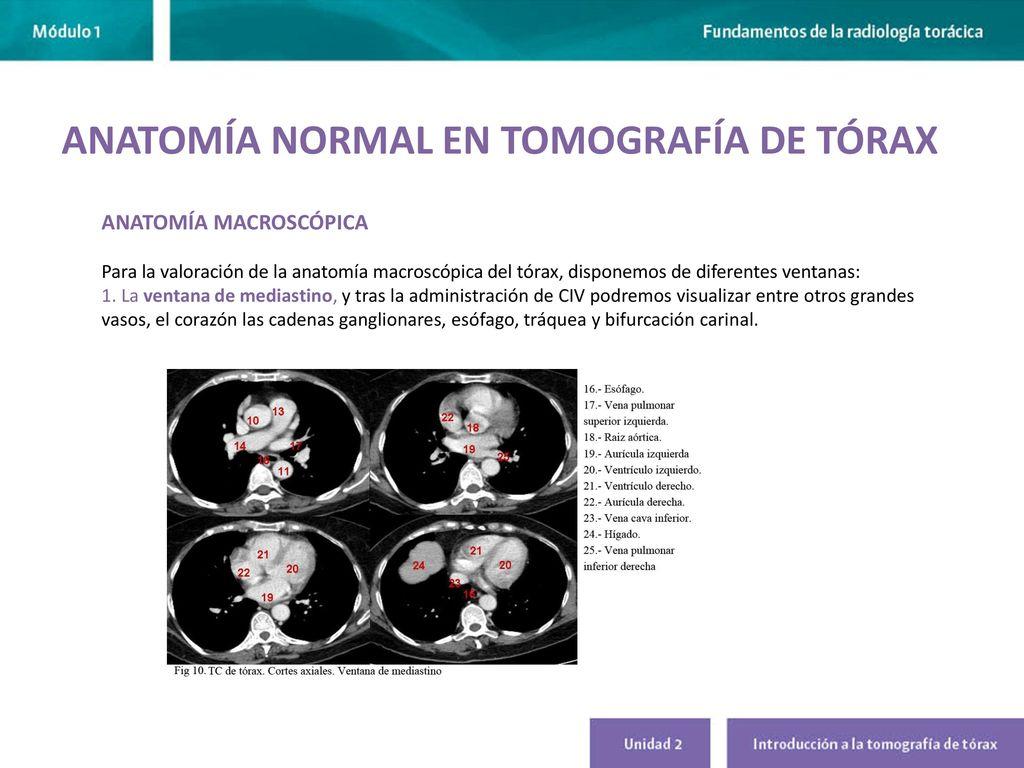 Moderno Tc De Tórax Anatomía Viñeta - Imágenes de Anatomía Humana ...