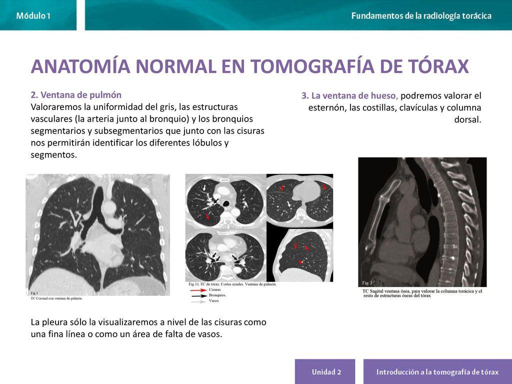 INTRODUCCIÓN A LA TOMOGRAFÍA DE TÓRAX - ppt video online descargar