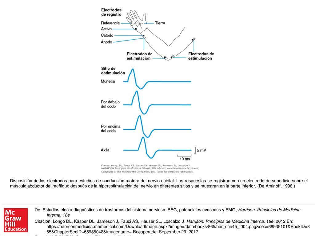 disposición de los electrodos para estudios de conducción motora del