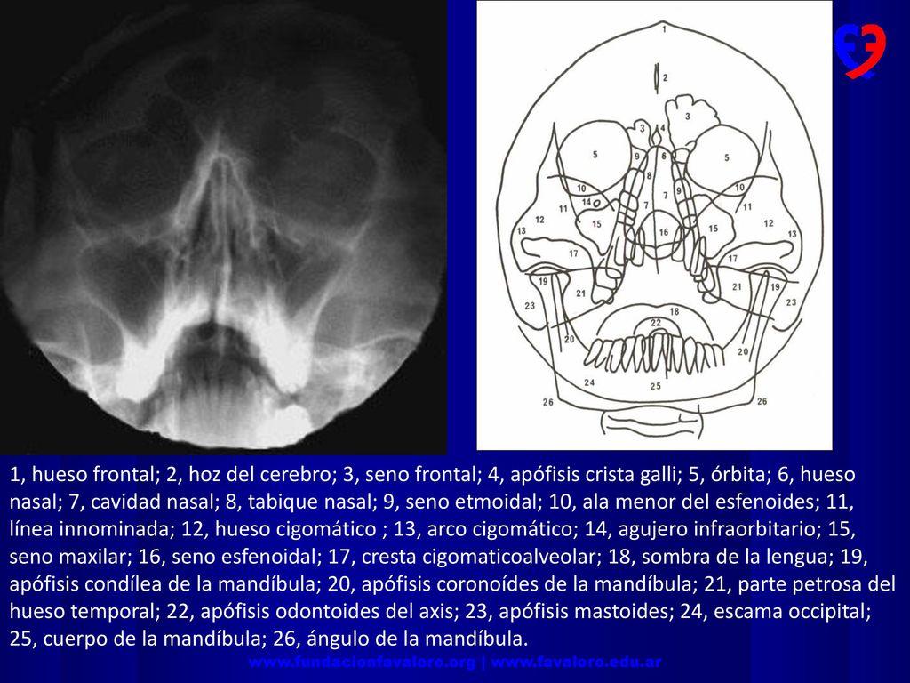 Neurorradiología. - ppt descargar