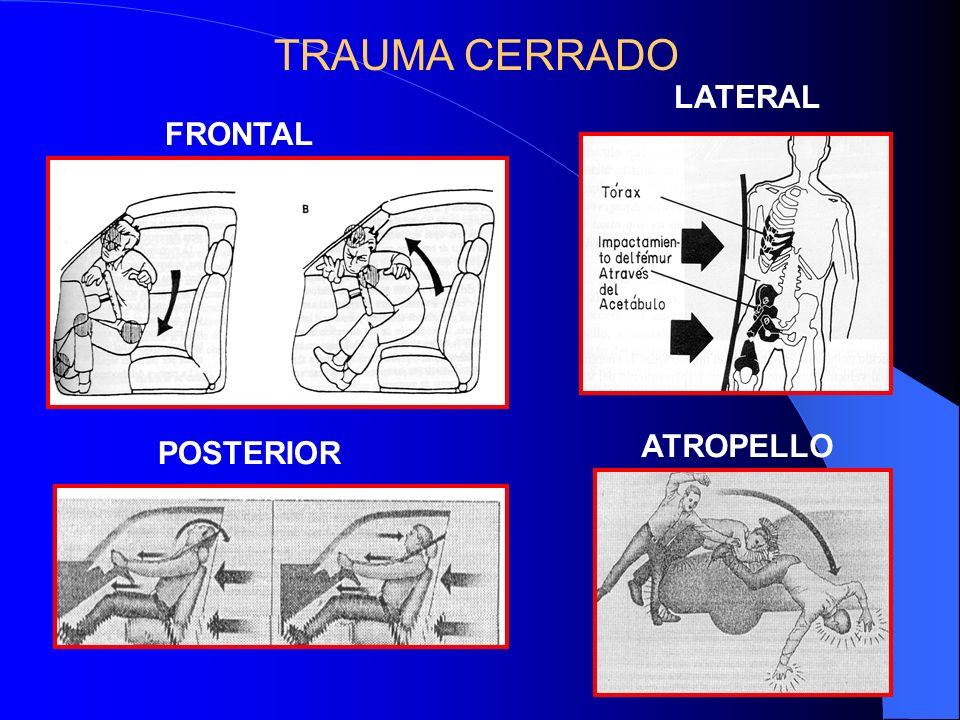 TRAUMA CERRADO LATERAL FRONTAL ATROPELLO POSTERIOR