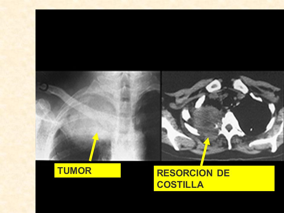 TUMOR RESORCION DE COSTILLA