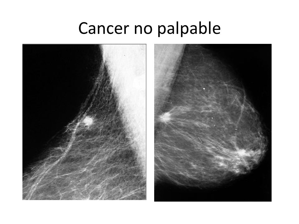 Cancer no palpable