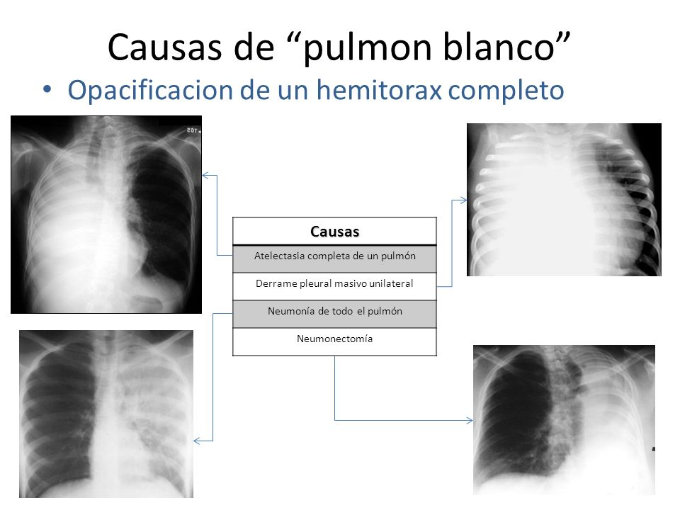 Causas de pulmon blanco