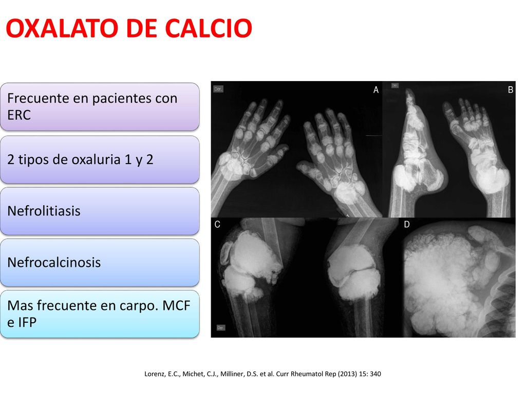 oxalato de calcio artritis