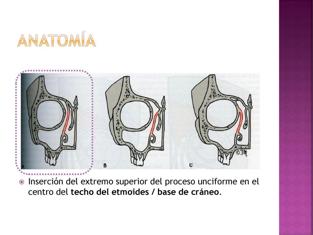 Cirugía endoscópica rinosinusal en Rinosinusitis crónica - ppt descargar