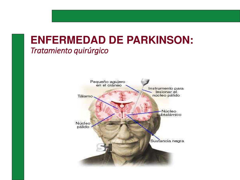 ENFERMEDAD DE PARKINSON - ppt descargar