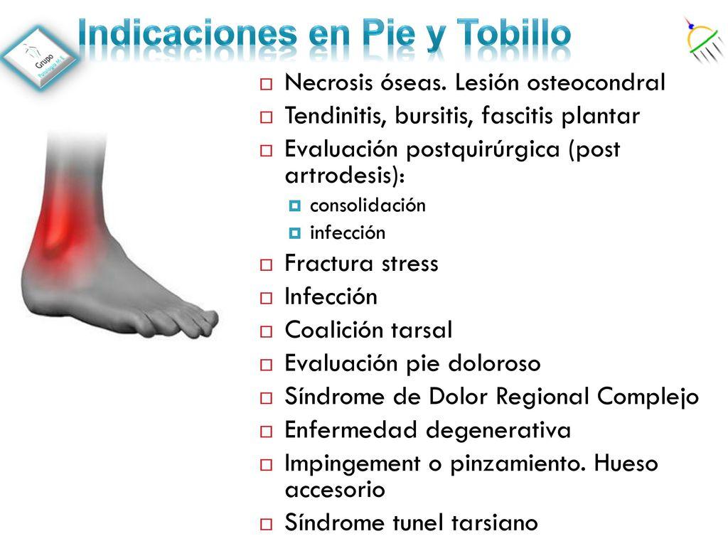 Imagen Molecular en el estudio de la patología de pie y tobillo ...