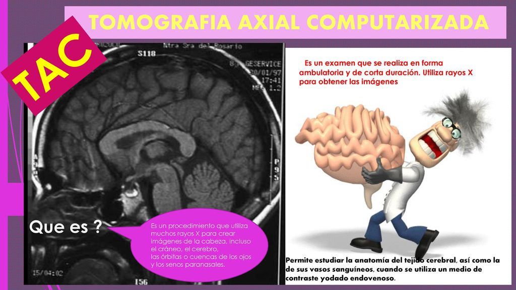 TOMOGRAFIA AXIAL COMPUTARIZADA - ppt descargar