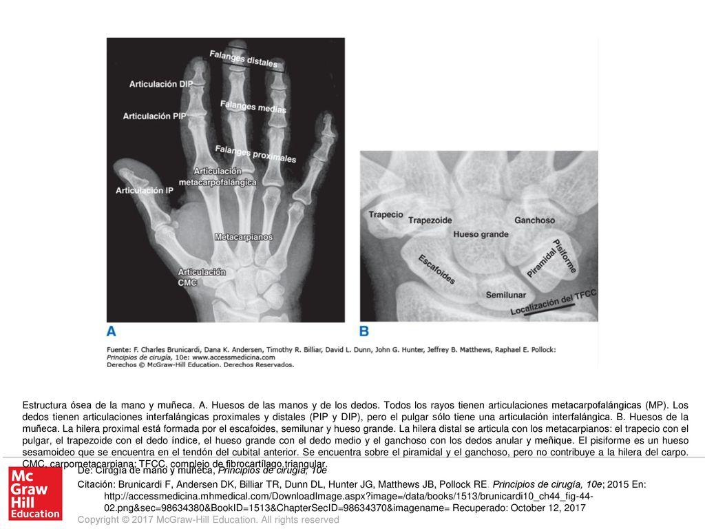 Estructura ósea de la mano y muñeca. A - ppt descargar