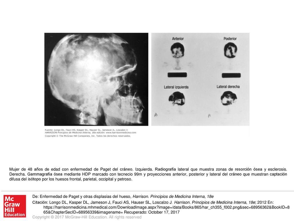 Mujer de 48 años de edad con enfermedad de Paget del cráneo ...