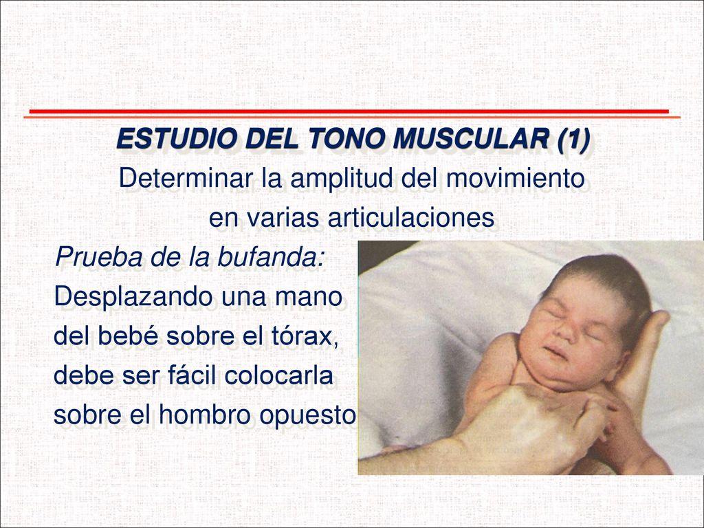 EXAMEN NEUROLÓGICO DEL RECIÉN NACIDO. - ppt descargar