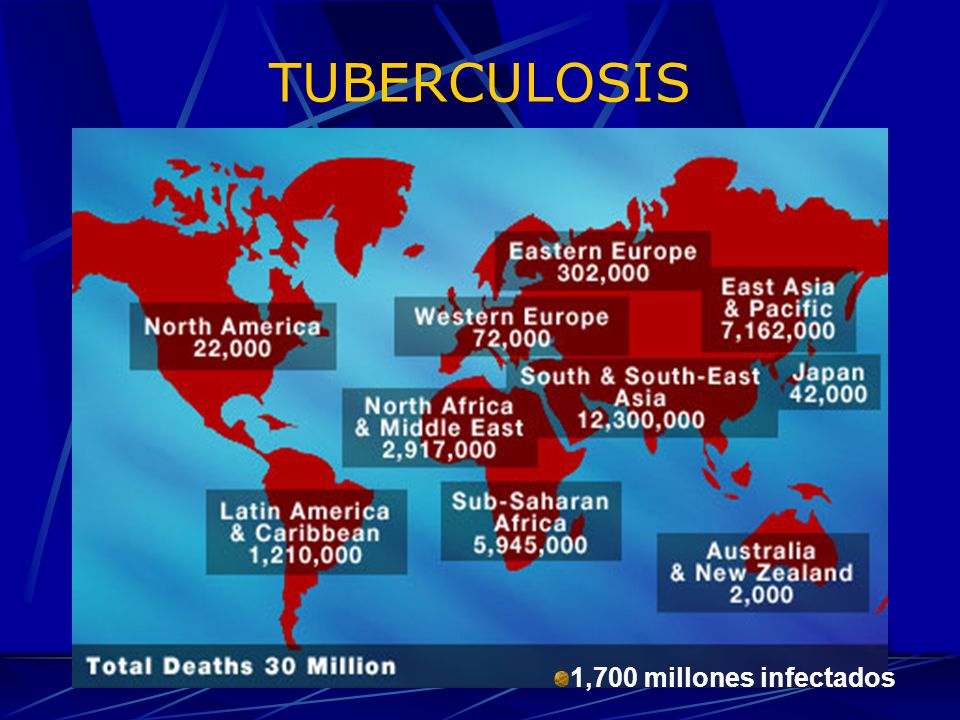 TUBERCULOSIS 1,700 millones infectados