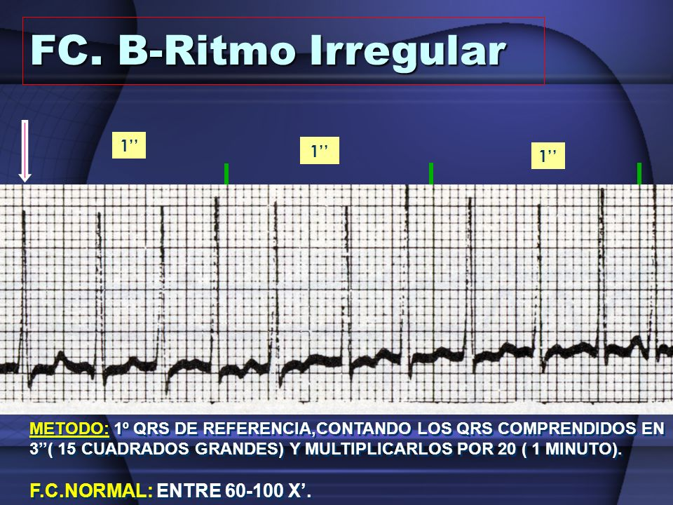 FC. B-Ritmo Irregular 3'' F.C.NORMAL: ENTRE 60-100 X'. 1'' 1'' 1''