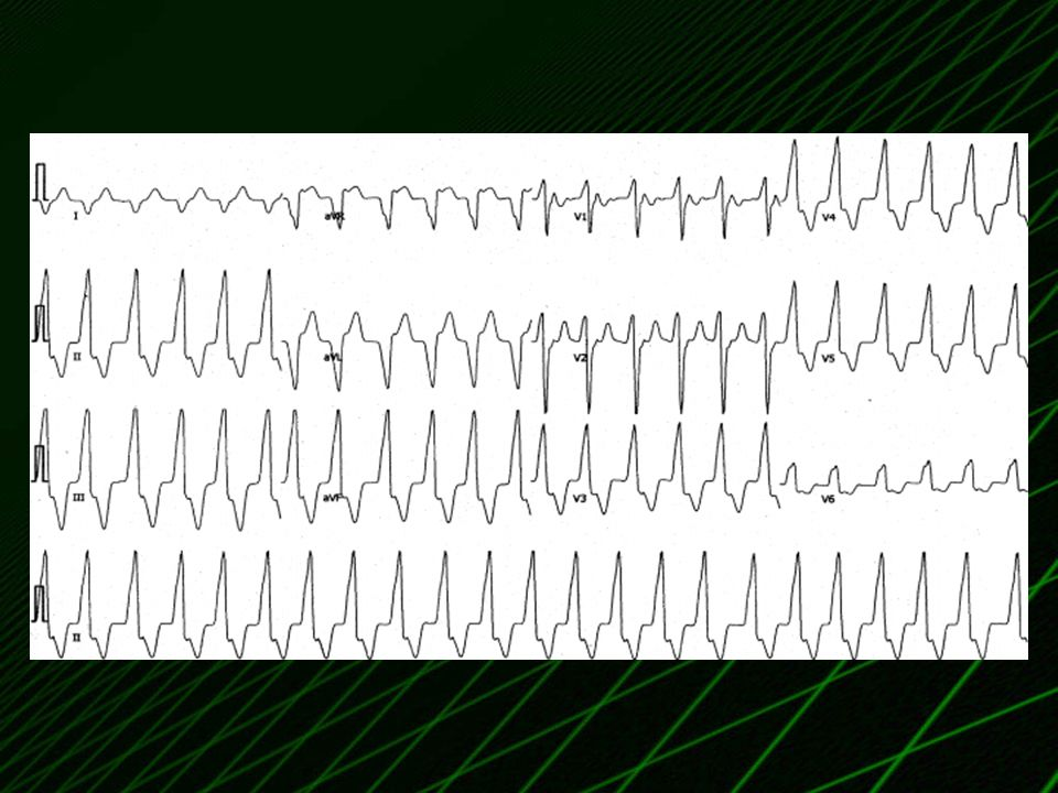 Electrocardiogram of ventricular tachycardia arising from the left sinus of Valsalva.