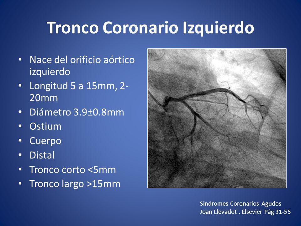 Anatomía Coronaria Dr. Ricardo Gutiérrez Leal - ppt video online ...