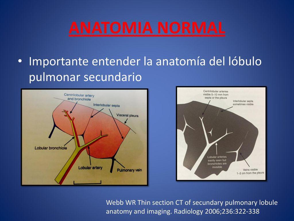 EVALUACION TOMOGRAFICA DE ENFERMEDAD PULMONAR INTERSTICIAL - ppt ...