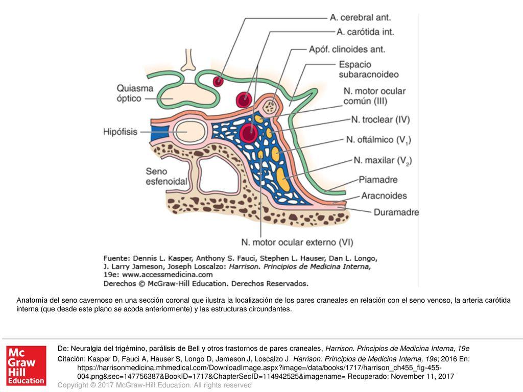 Anatomía del seno cavernoso en una sección coronal que ilustra la ...