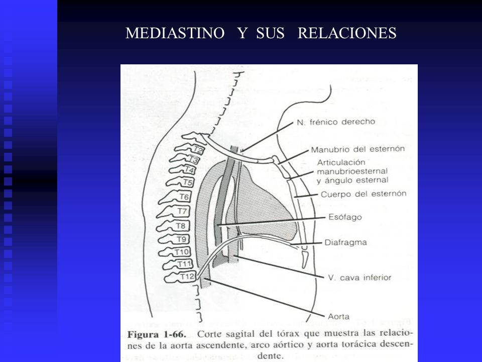 ANATOMÍA HUMANA UNIVERSIDAD DR JOSE MATÍAS DELGADO Mediastino - ppt ...