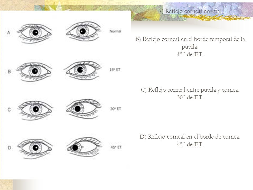 A) Reflejo corneal normal