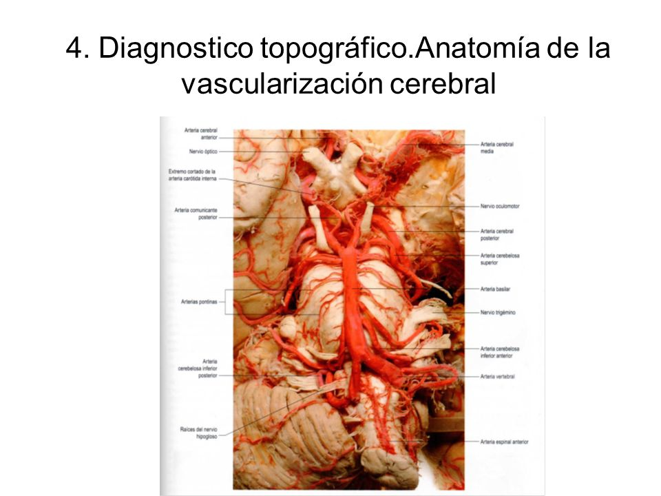 Accidentes Cerebro Vasculares - ppt descargar