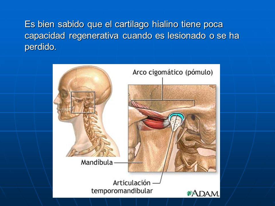 Excelente La Mandíbula Atm Anatomía Componente - Anatomía de Las ...