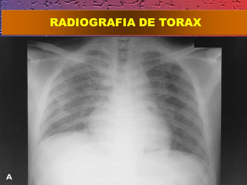 RADIOGRAFIA DE TORAX failure shows diffuse bilateral consolidation and ground-glass opacities.
