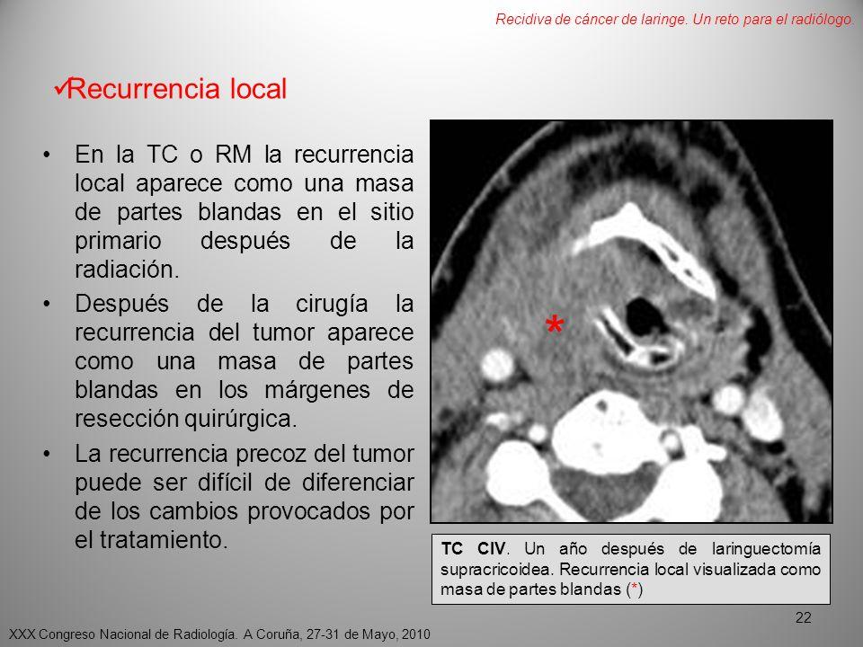 RECIDIVA DE CANCER DE LARINGE. UN RETO PARA EL RADIÓLOGO. - ppt ...