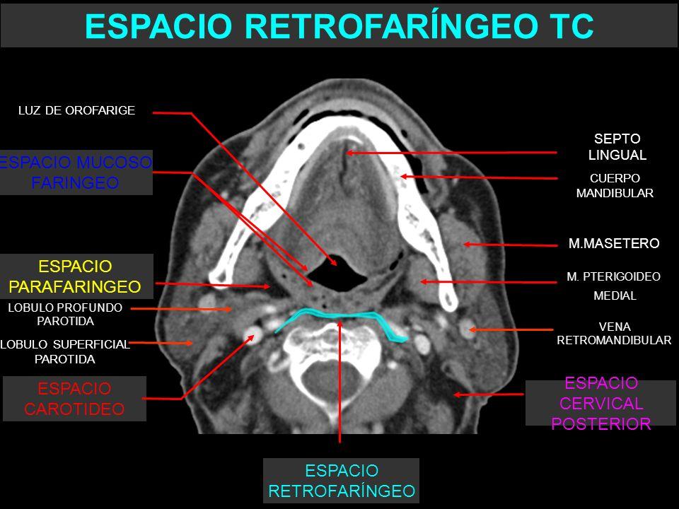ESPACIO RETROFARINGEO - ppt video online descargar