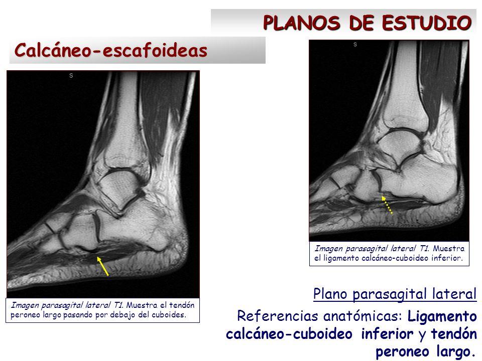 RESULTADOS Coaliciones óseas Todas calcáneo-astragalinas - ppt video ...