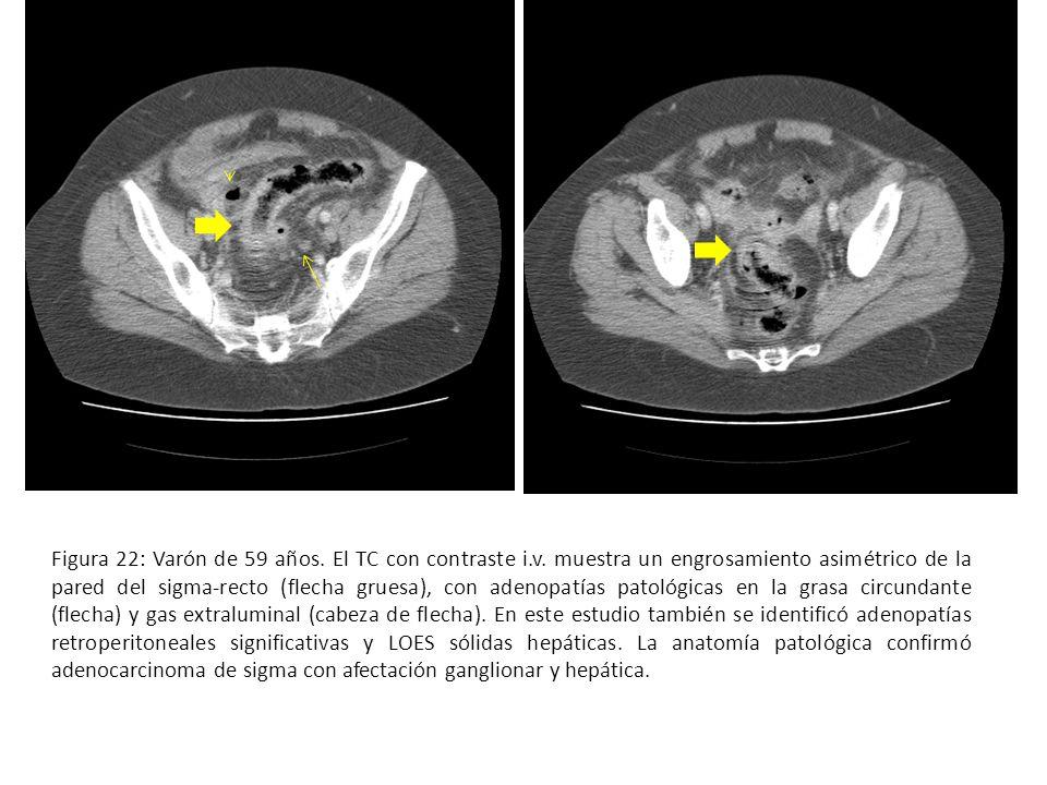 Figura 1: El colon se extiende desde el polo cecal hasta el ano y ...