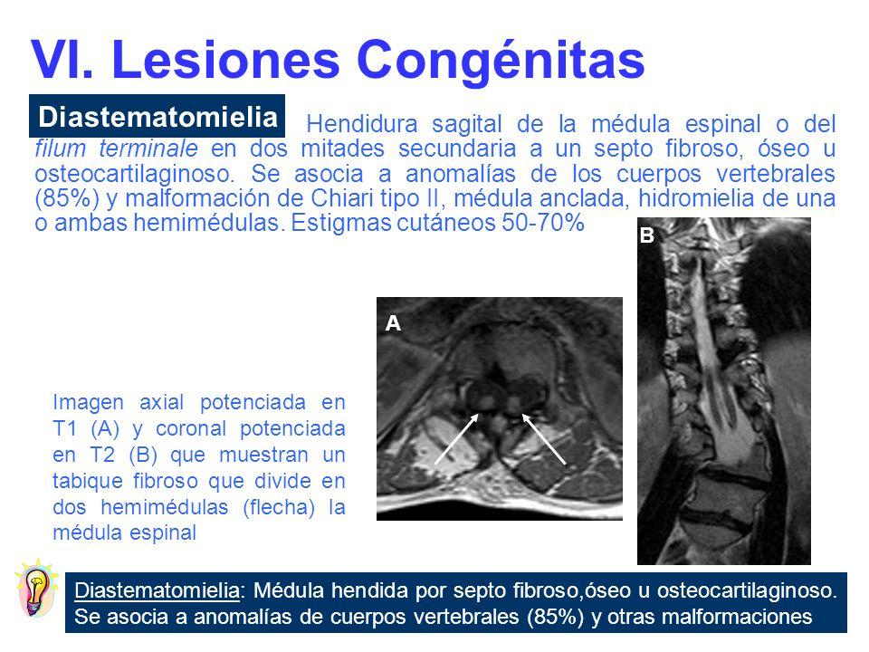Patologia Del Filum Terminale Una Mirada Atras Ppt Descargar Royo salvador, un filum terminale que. patologia del filum terminale una