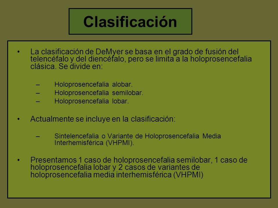 síntomas de holoprosencefalia semilobar de diabetes
