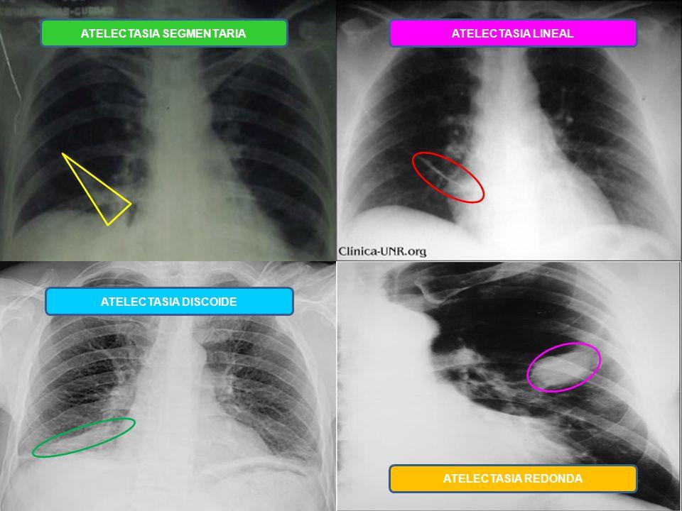 Atractivo Arteria Pulmonar Anatomía Radiología Composición ...