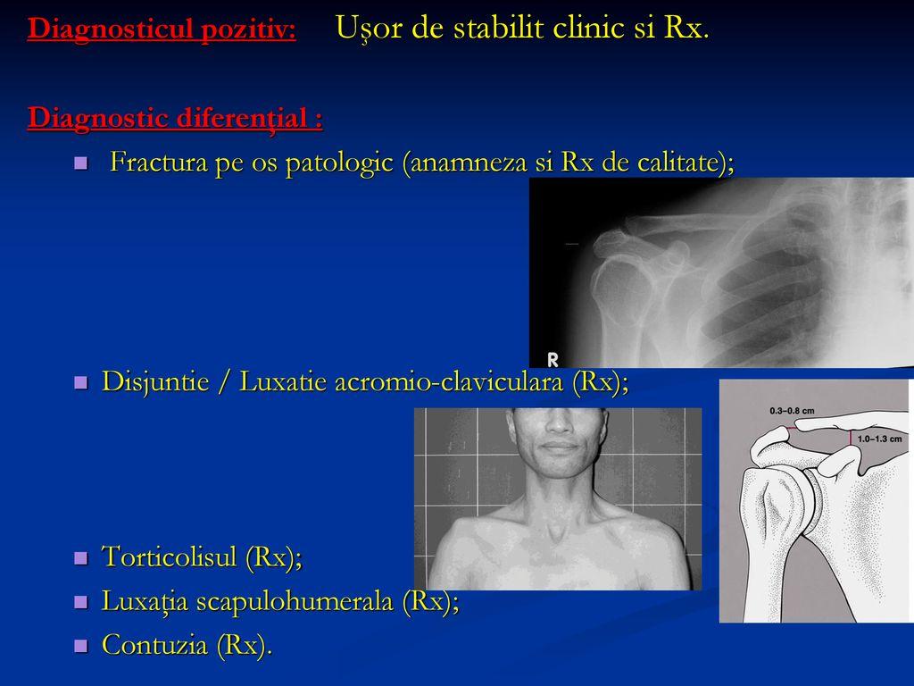 Durerea de umar Fractură închisă a tratamentului articulației umărului