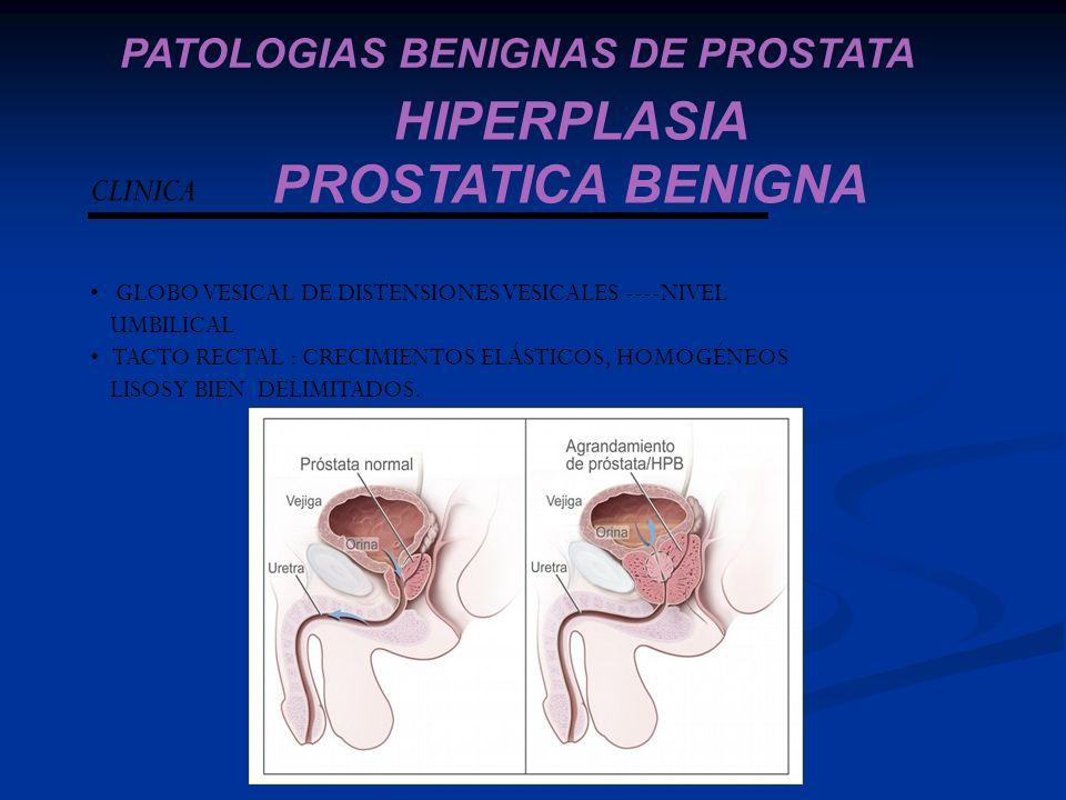 tumores de Prostata UNIVERSIDAD NACIONAL EXPERIMENTAL - ppt descargar