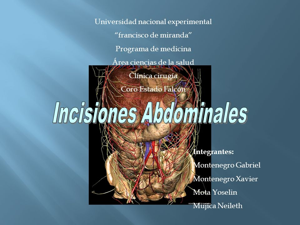 Incisiones Abdominales