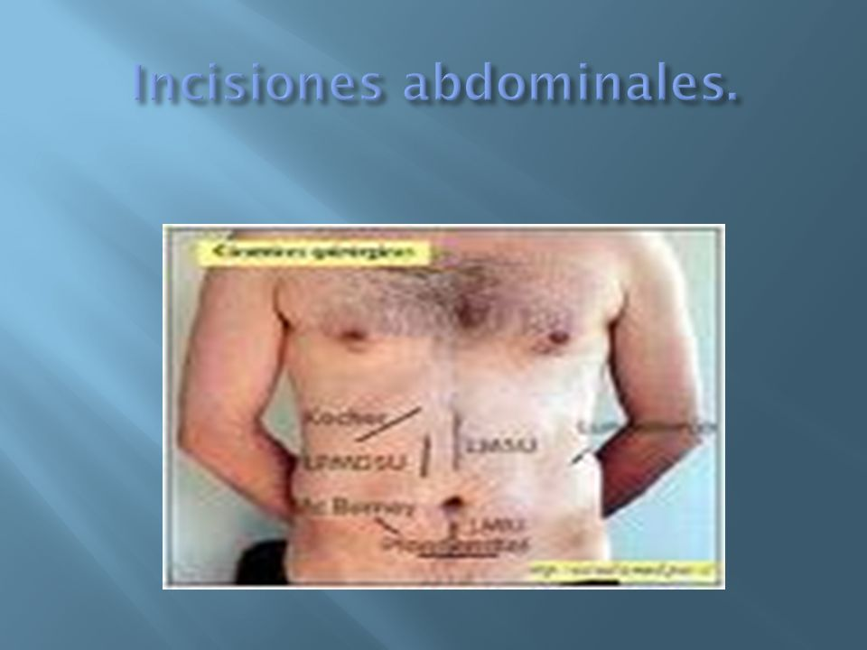 Incisiones abdominales.