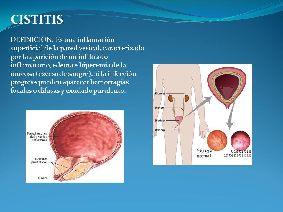 definicion de cistitis signos y sintomas